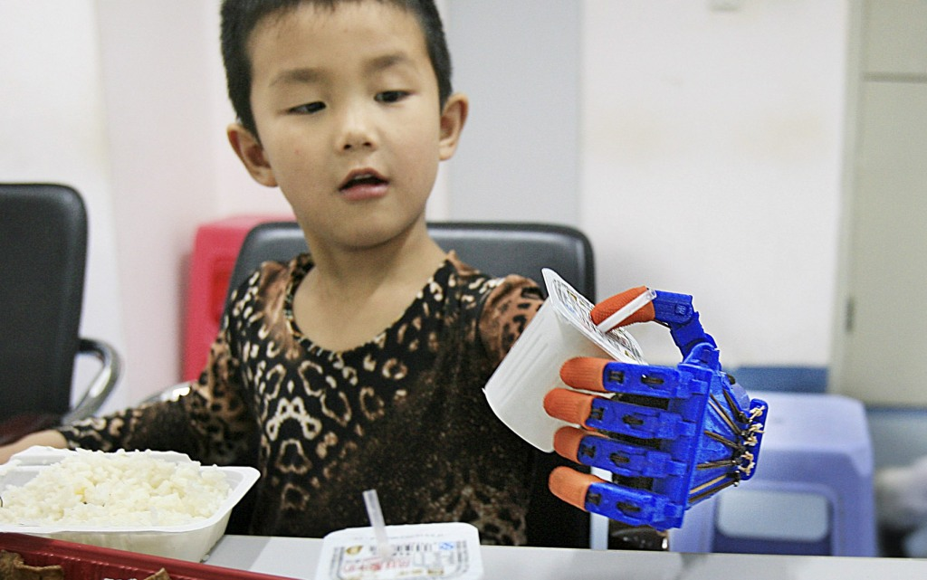 Xiaocheng, 6, whose left hand was partially amputated after a car accident when he was 4, grabs a box of yoghurt with a 3D-printed prosthetic hand, at a hospital in Wuhan