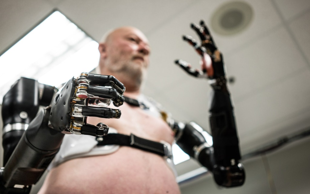 Les Baugh, wearing a Modular Prosthetic Limb, at the Johns Hopkins University Applied Physics Lab in Laurel, Maryland.